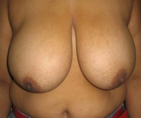 Manhattan Breast Reduction before 3